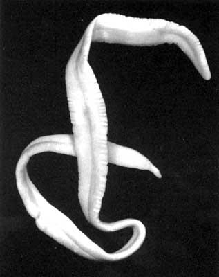 паразиты в кишечнике человека фото и название